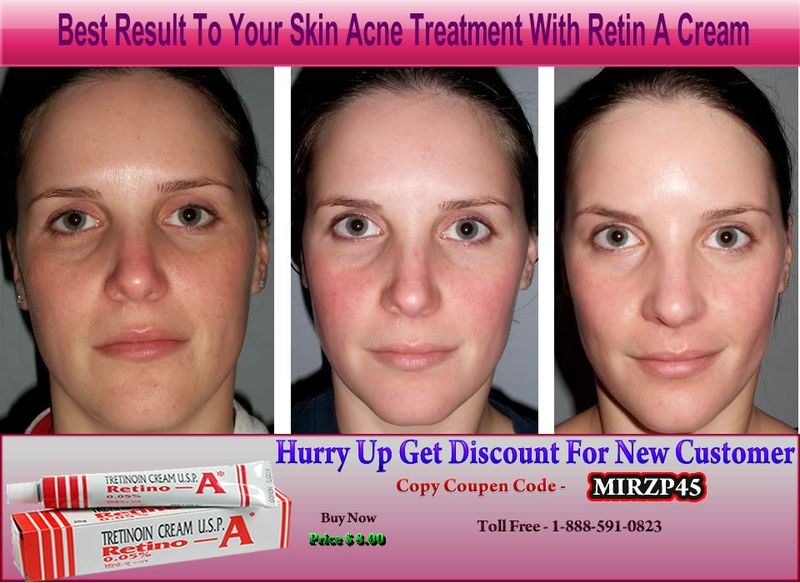 YOUR SKIN WINS IF YOU ARE USING CREAM RETIN A - Health Blog
