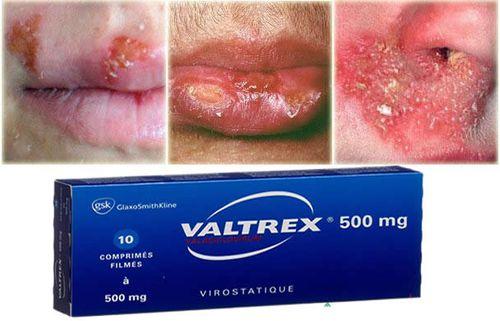 Buy-Valtrex-online