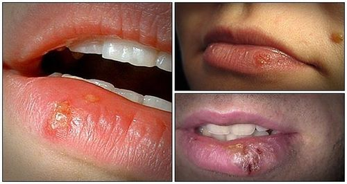 Herpes Virus Infections
