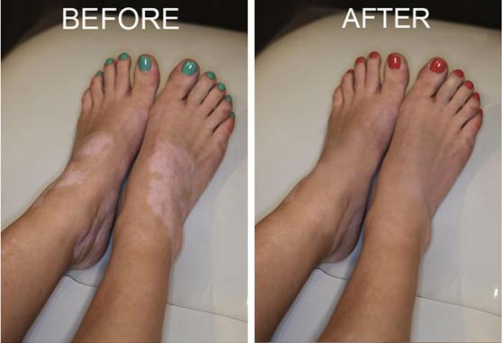 Removes the problem of vitiligo