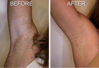 Benoquin the best results of vitiligo