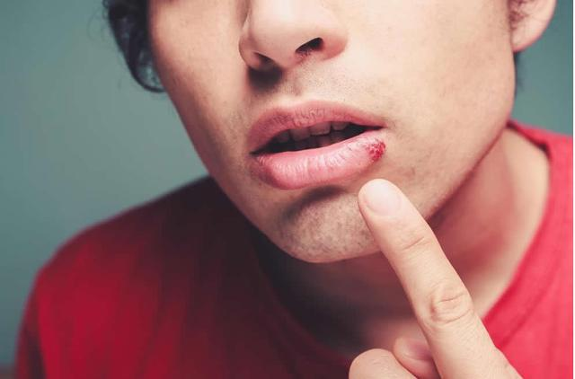 Valacyclovir hcl is used for cold sores