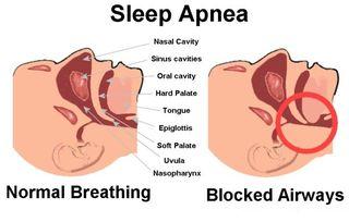 Sleep Apnea By Armodafinil Drug